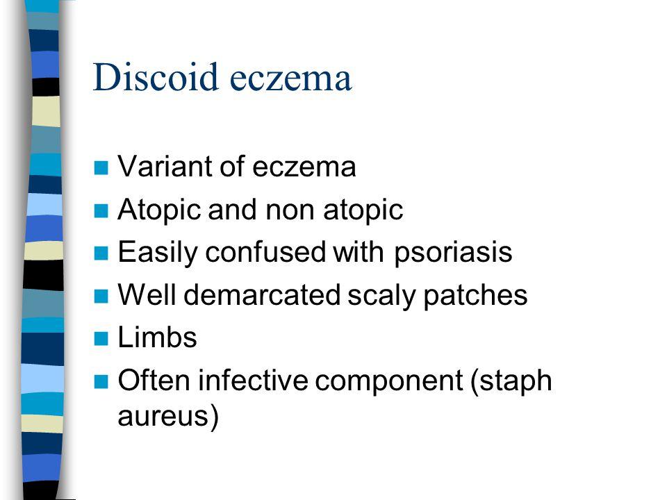 Discoid eczema Variant of eczema Atopic and non atopic