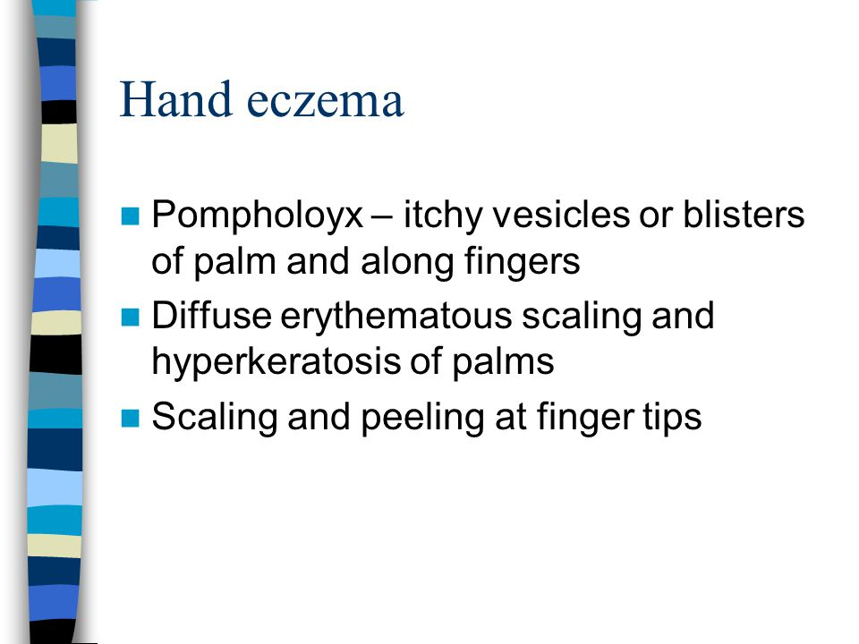 Hand eczema Pompholoyx – itchy vesicles or blisters of palm and along fingers. Diffuse erythematous scaling and hyperkeratosis of palms.