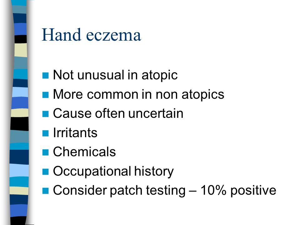 Hand eczema Not unusual in atopic More common in non atopics