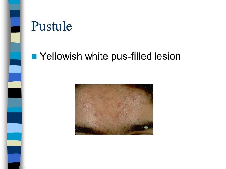 Pustule Yellowish white pus-filled lesion