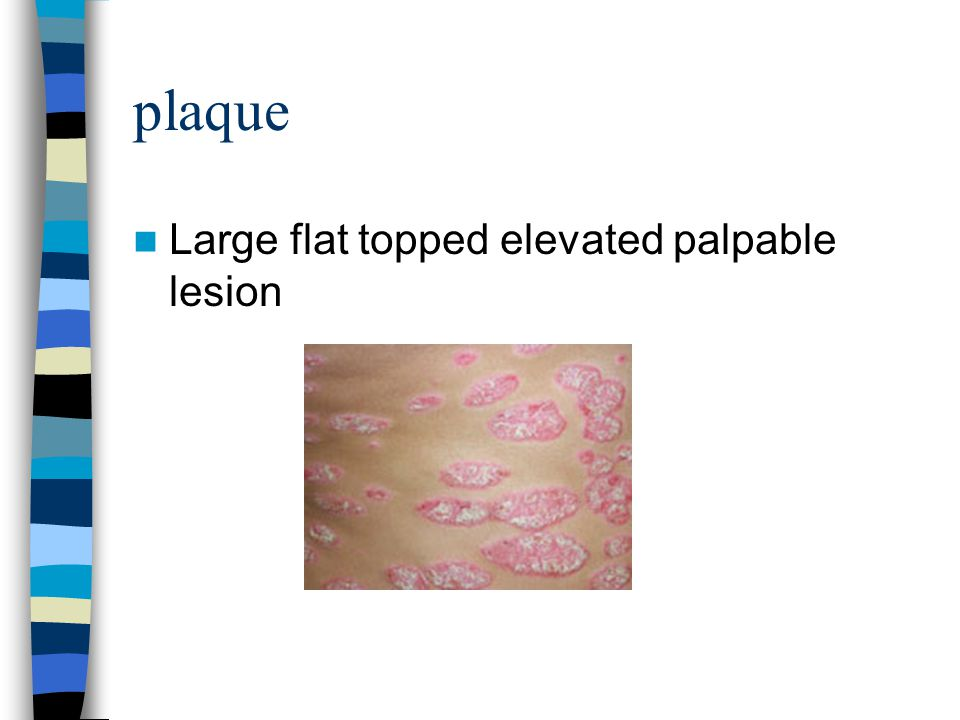 plaque Large flat topped elevated palpable lesion