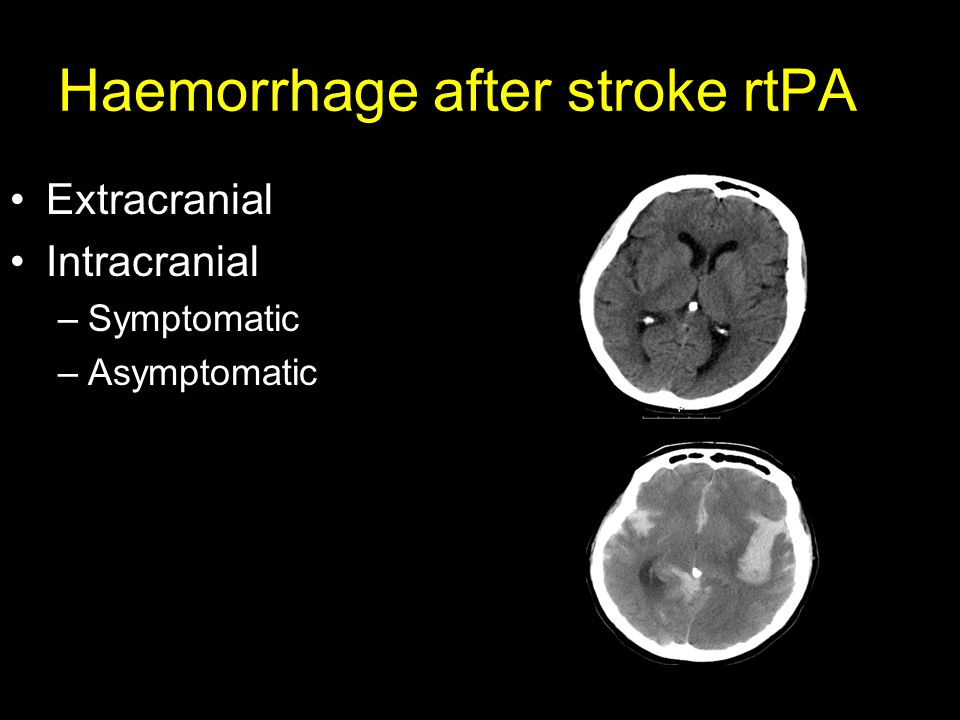 Haemorrhage after stroke rtPA