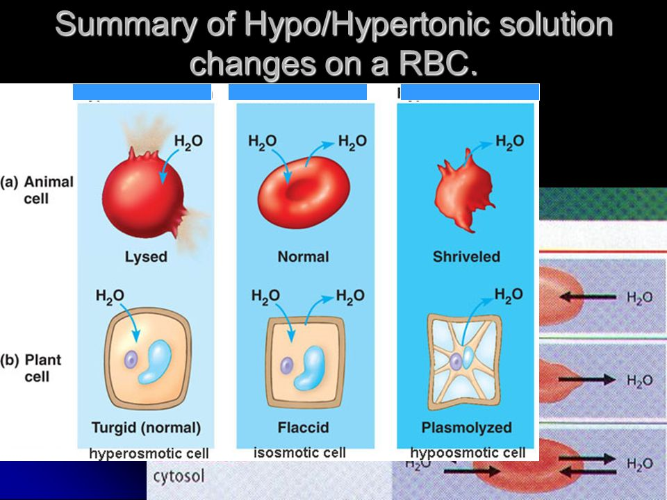 Summary of Hypo/Hypertonic solution changes on a RBC.