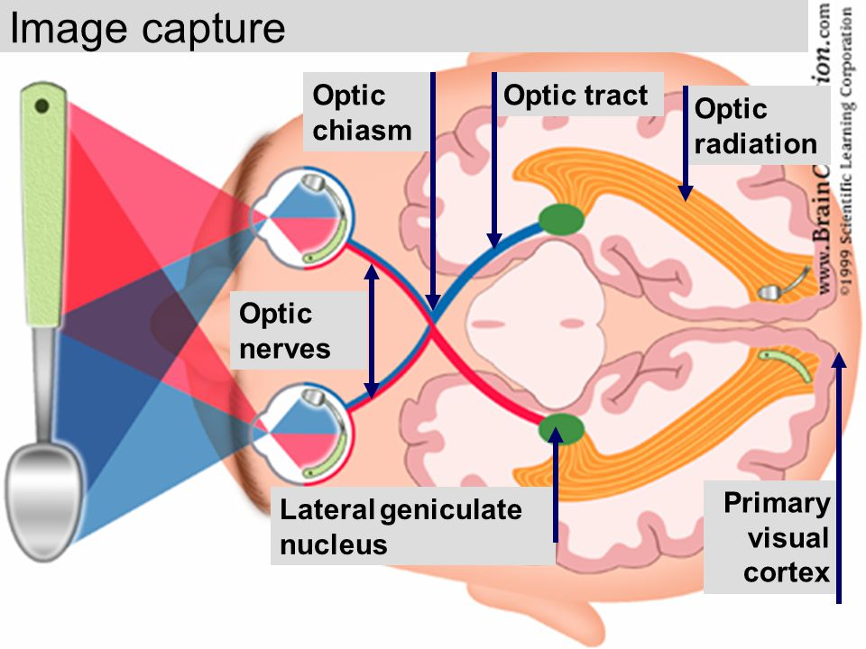 Image capture Optic chiasm Optic tract Optic radiation Optic nerves