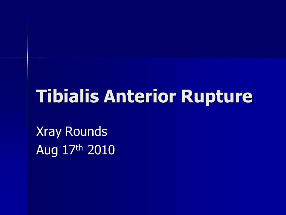 Tibialis Anterior Rupture
