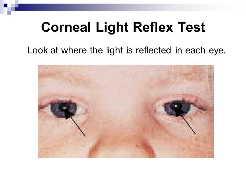 Corneal Light Reflex Test