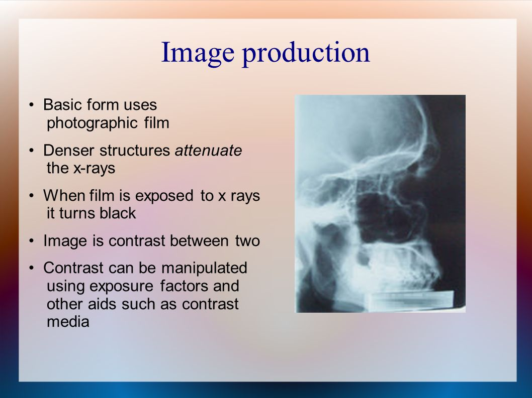 Image production • Basic form uses photographic film