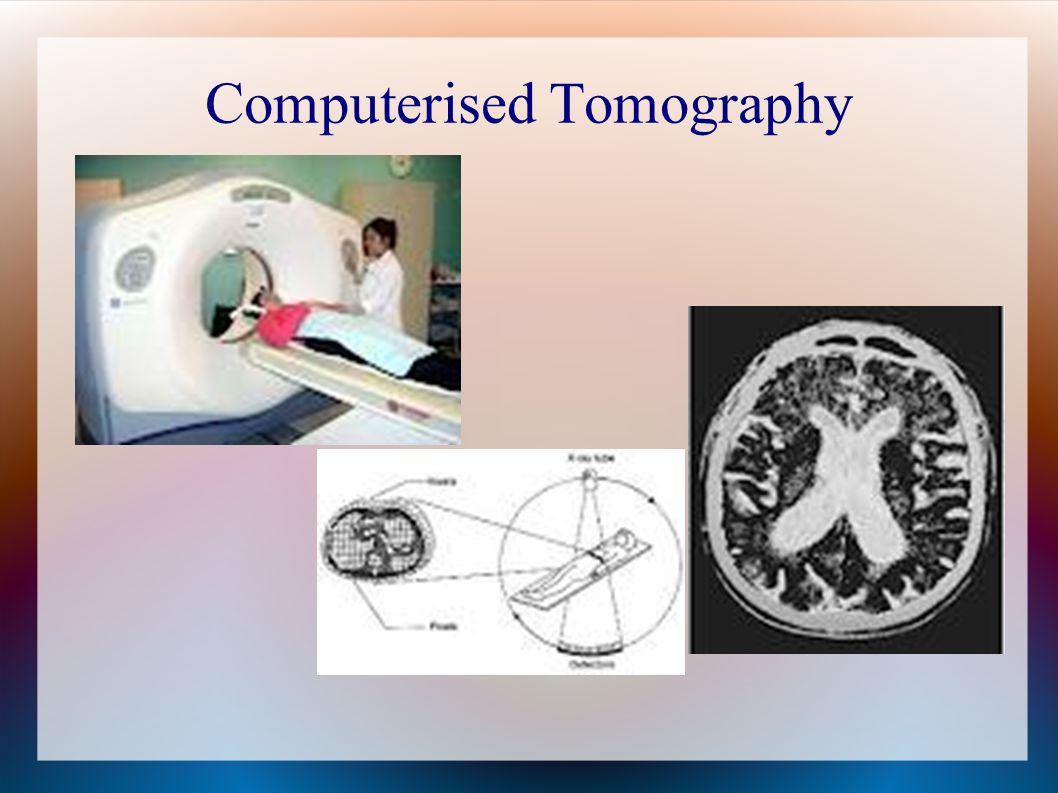 Computerised Tomography