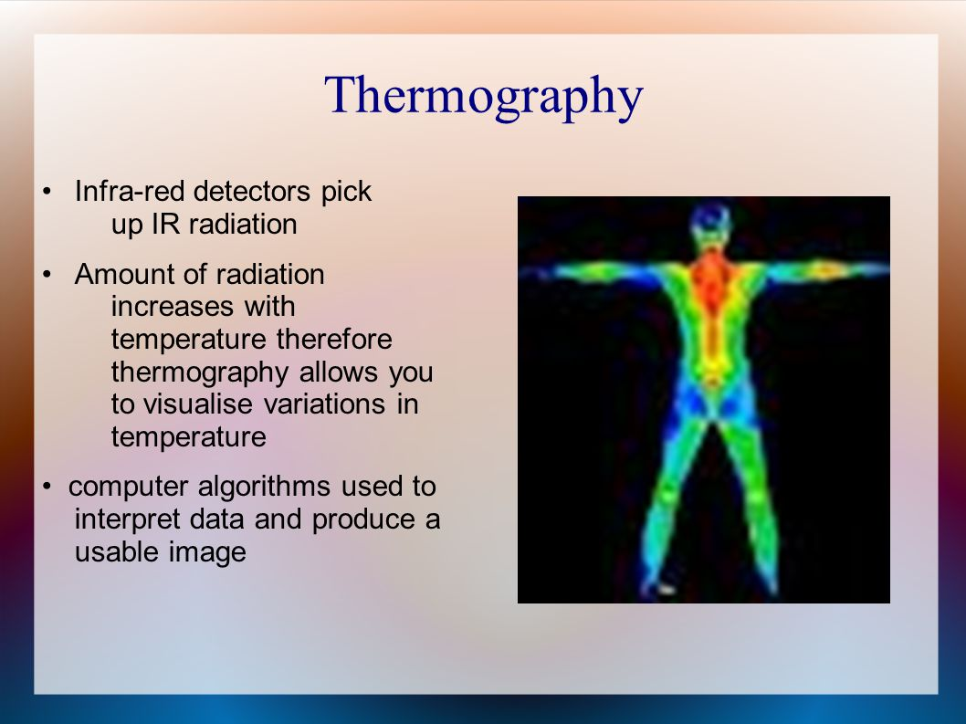 Thermography • Infra-red detectors pick up IR radiation
