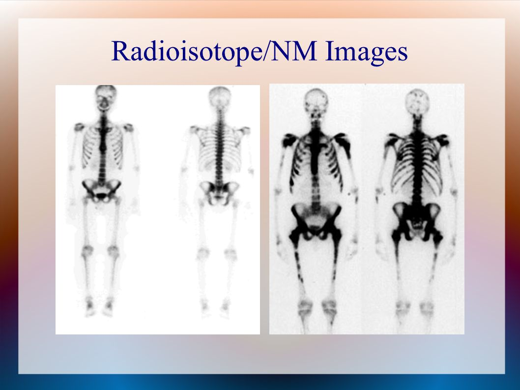 Radioisotope/NM Images