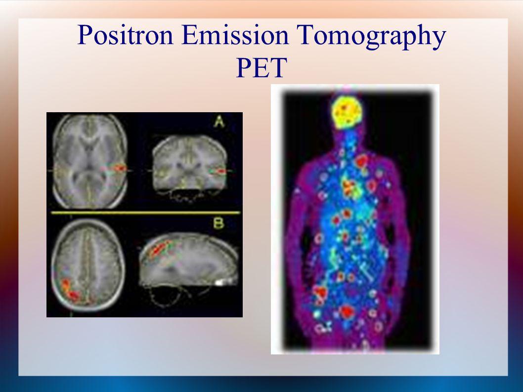 Positron Emission Tomography PET