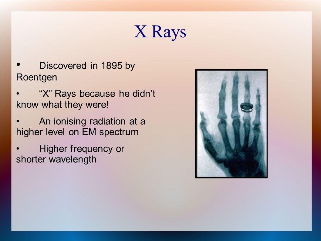 X Rays • Discovered in 1895 by Roentgen