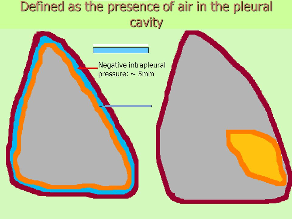 Defined as the presence of air in the pleural cavity