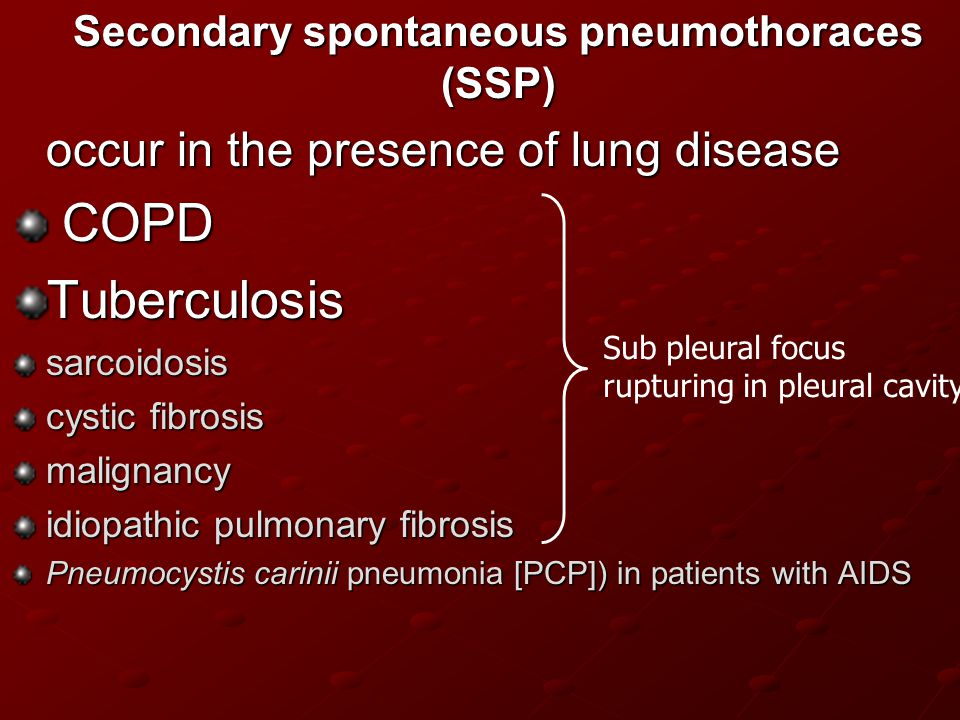 Secondary spontaneous pneumothoraces (SSP)