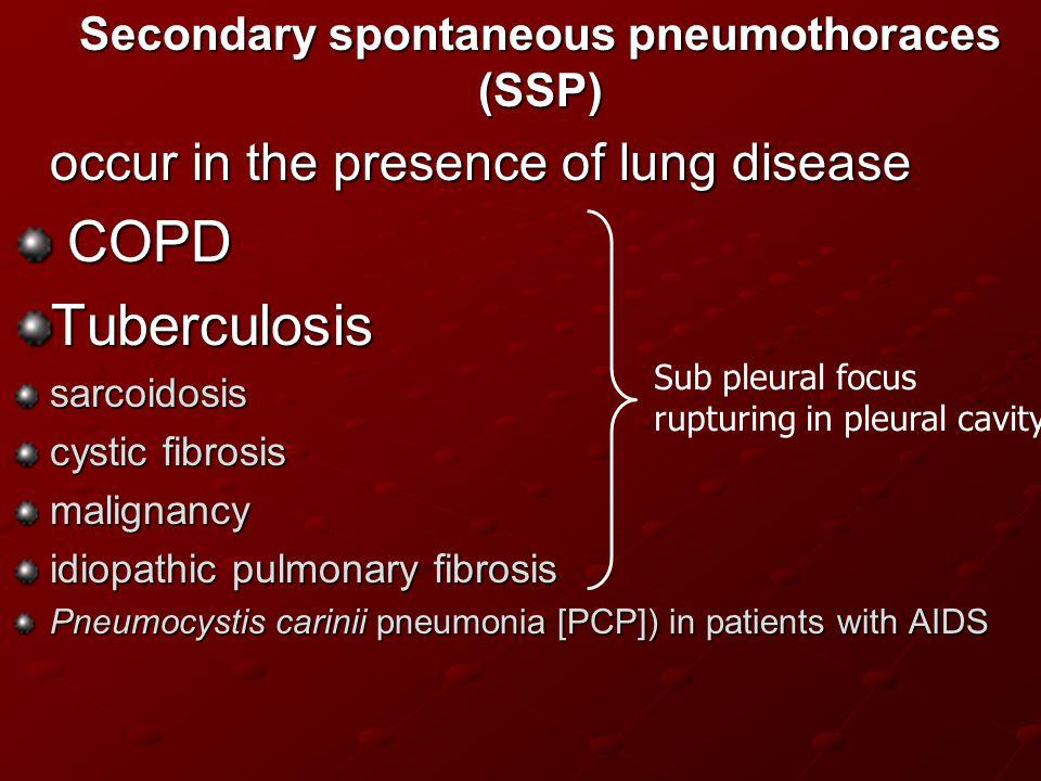 Secondary spontaneous pneumothoraces (SSP)