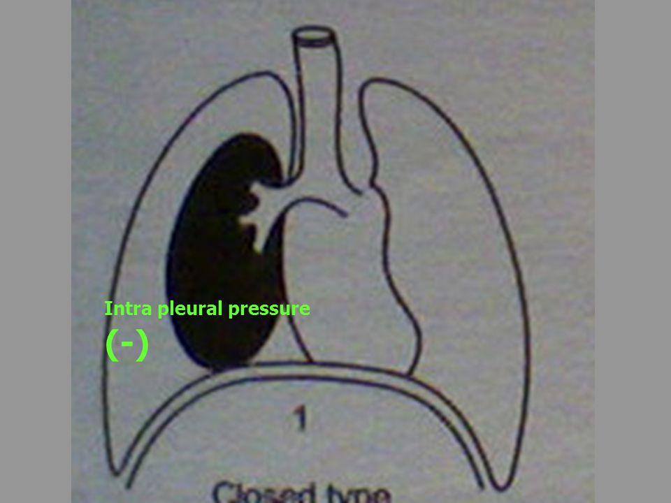 Intra pleural pressure (-)