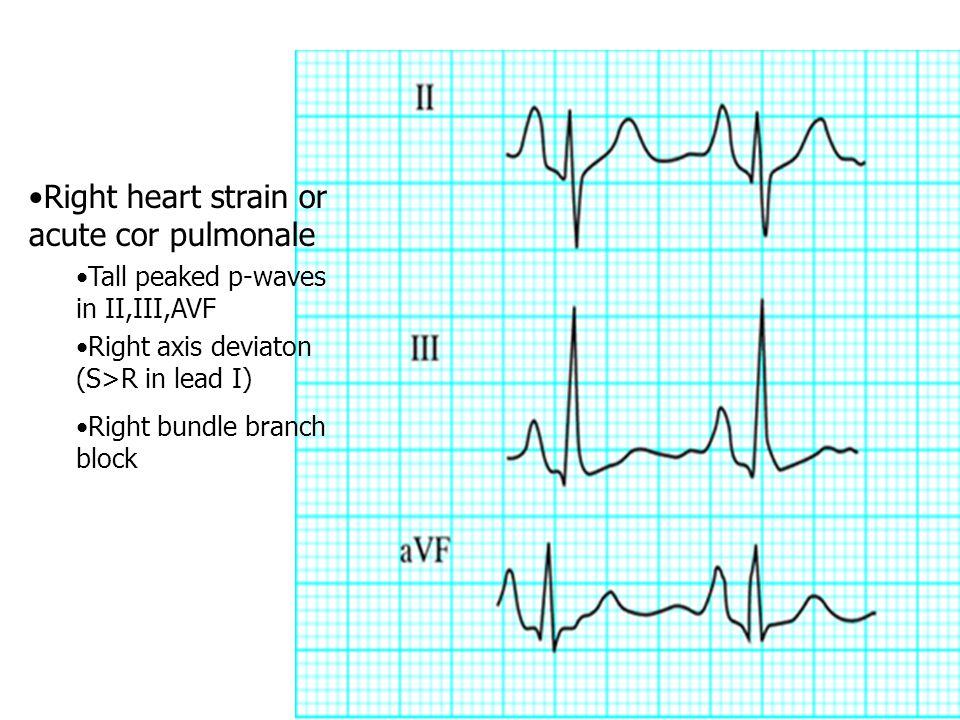Right heart strain or acute cor pulmonale