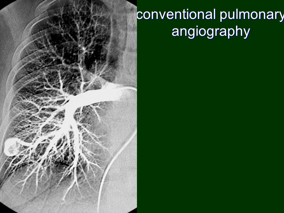 conventional pulmonary angiography