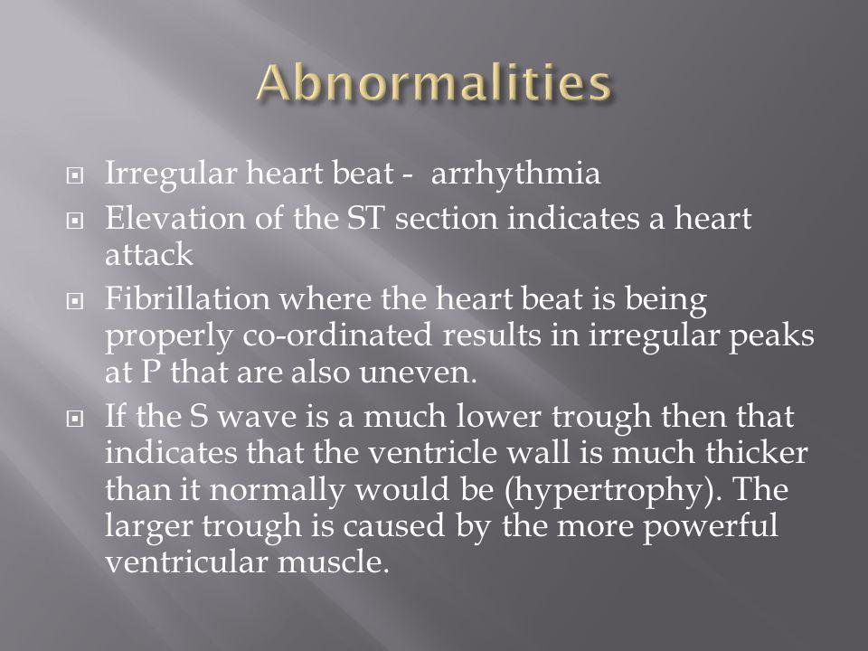 Abnormalities Irregular heart beat - arrhythmia