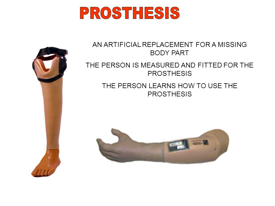 PROSTHESIS AN ARTIFICIAL REPLACEMENT FOR A MISSING BODY PART