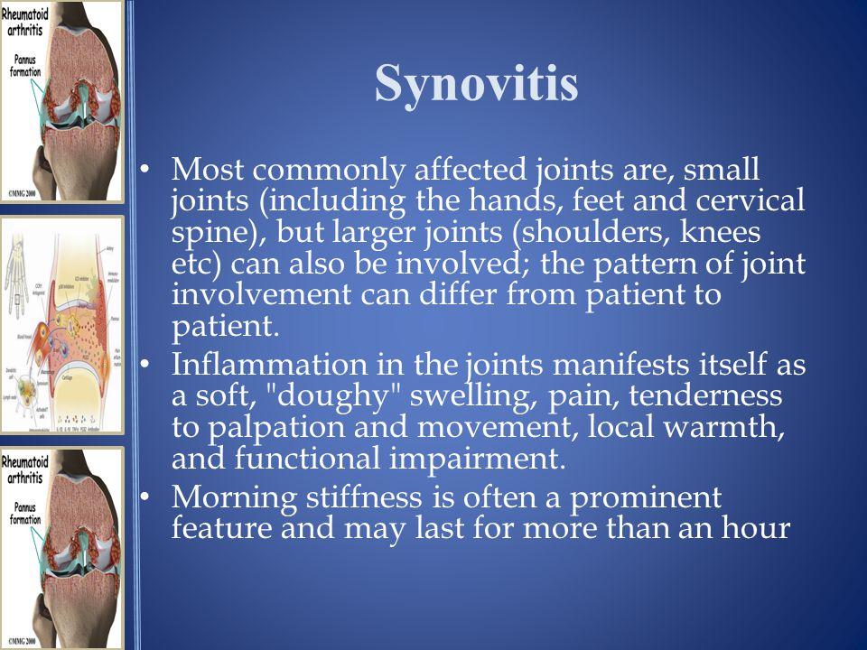 Synovitis