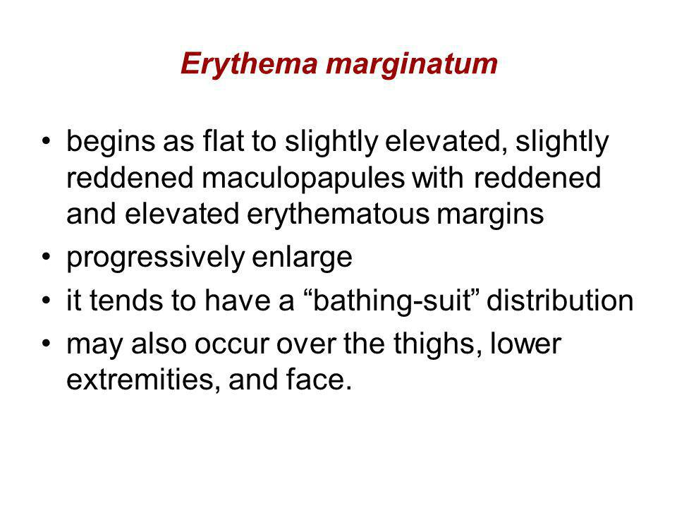 Erythema marginatum begins as flat to slightly elevated, slightly reddened maculopapules with reddened and elevated erythematous margins.