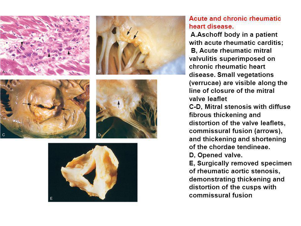 Acute and chronic rheumatic heart disease.