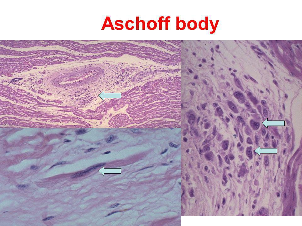 Aschoff body