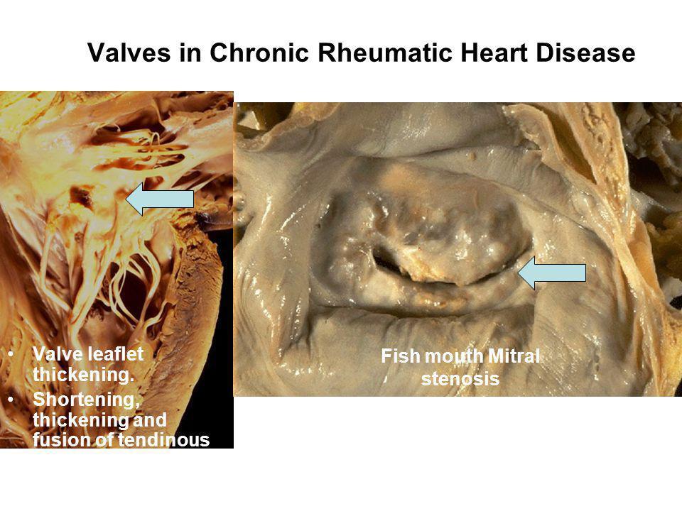 Valves in Chronic Rheumatic Heart Disease