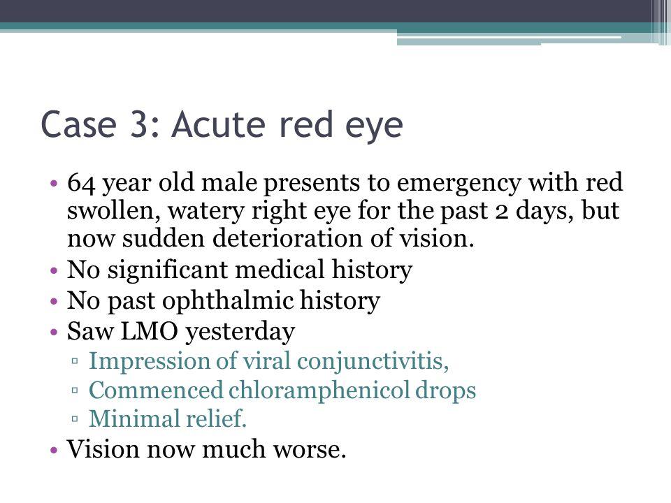 Case 3: Acute red eye