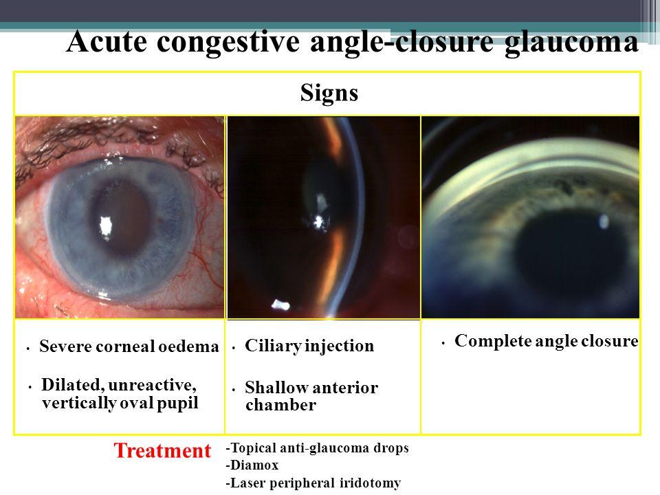 Acute congestive angle-closure glaucoma
