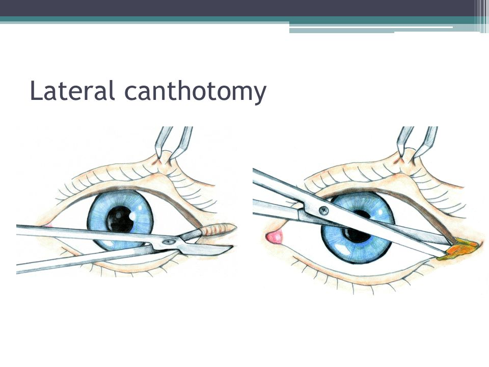 Lateral canthotomy Perform lateral canthotomy, as follows.