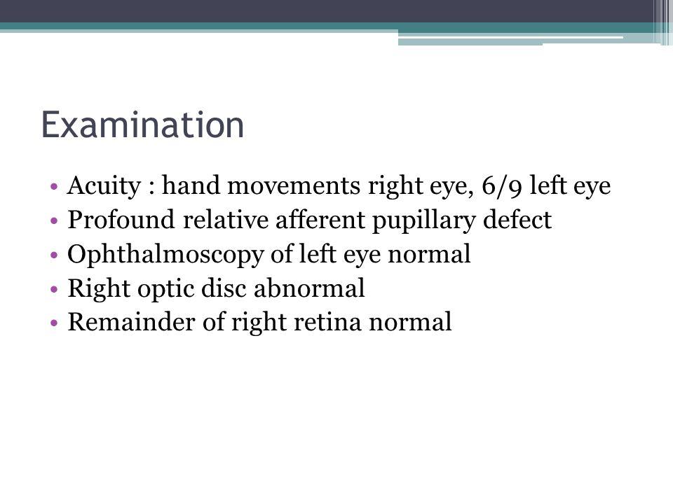 Examination Acuity : hand movements right eye, 6/9 left eye