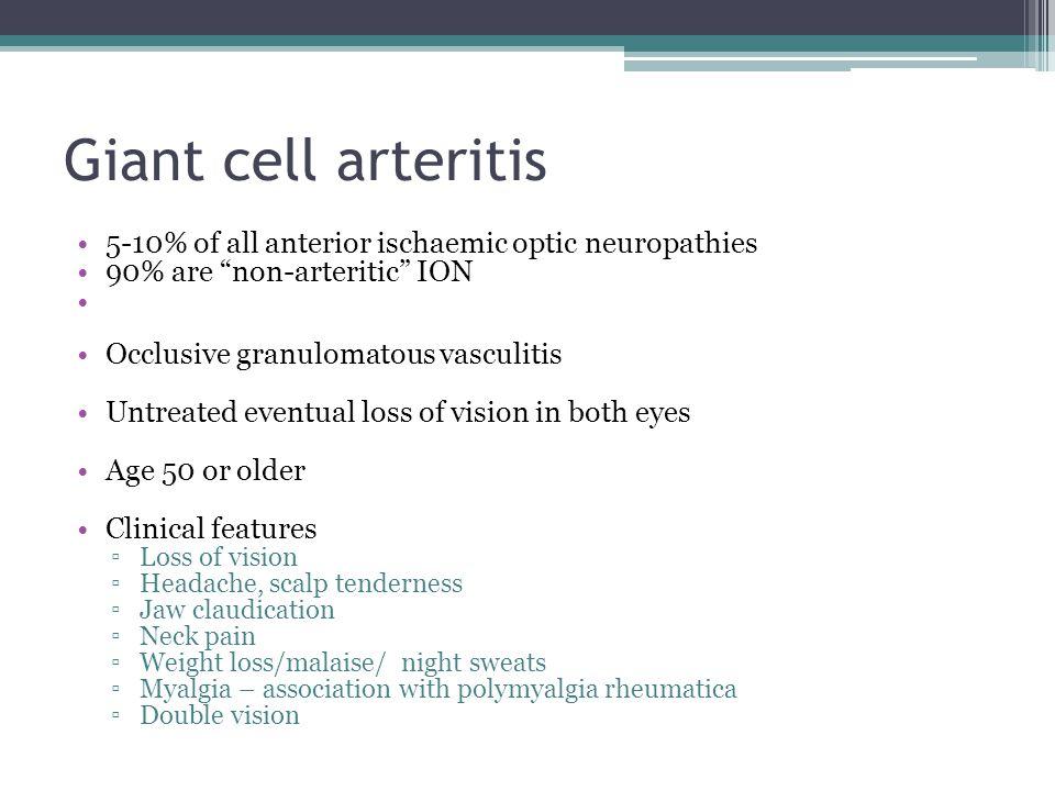 Giant cell arteritis 5-10% of all anterior ischaemic optic neuropathies. 90% are non-arteritic ION.