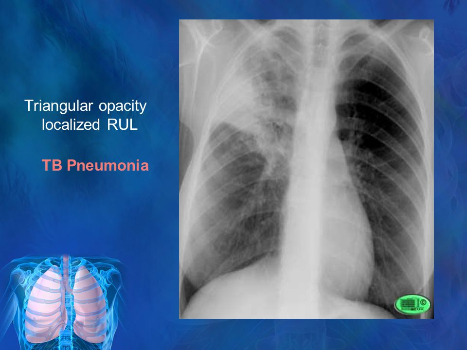the differences and similarities of pneumonia and tuberculosis Consideration between annals and hippo education  em:rap, or   pneumonia versus tb  mycobacterium tb but doesn't distinguish  whether there is.