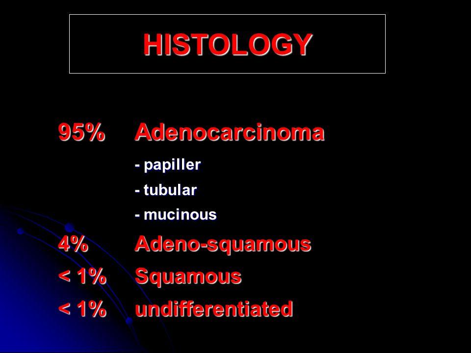 HISTOLOGY < 1% Squamous < 1% undifferentiated 95% Adenocarcinoma