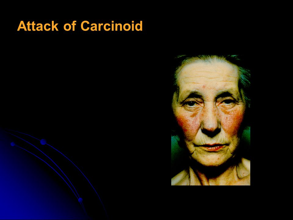 Attack of Carcinoid