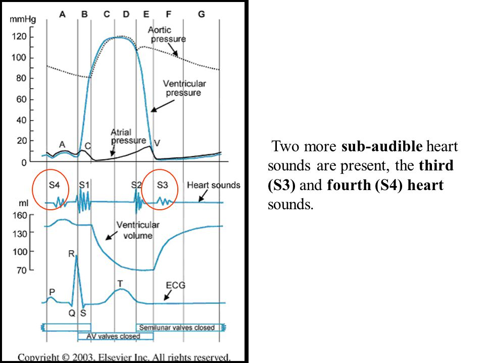 Two more sub-audible heart sounds are present, the third (S3) and fourth (S4) heart sounds.