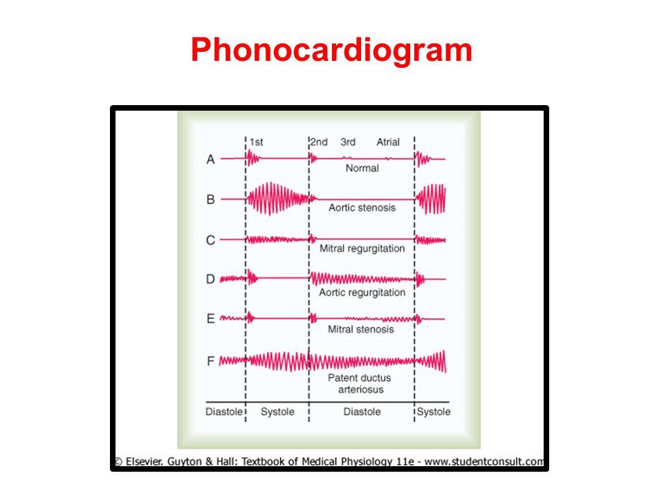 Phonocardiogram