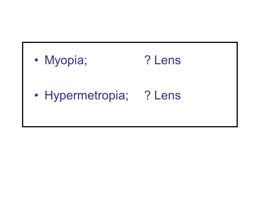 Myopia; Lens Hypermetropia; Lens