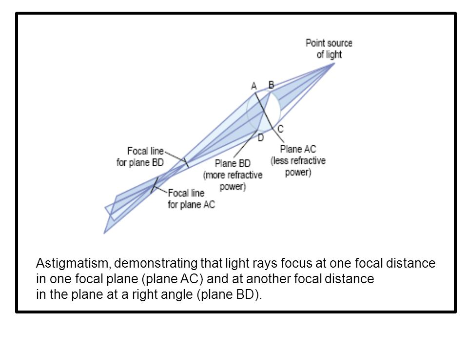 Astigmatism, demonstrating that light rays focus at one focal distance