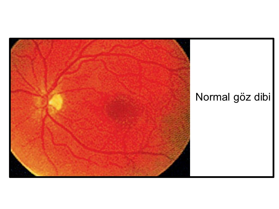 Normal göz dibi