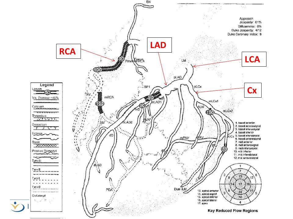 LAD RCA LCA Cx RCA – supplies blood to RA, RV & bottom portion of LV