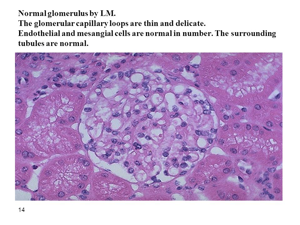 Normal glomerulus by LM