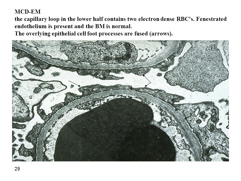 MCD-EM the capillary loop in the lower half contains two electron dense RBC s.