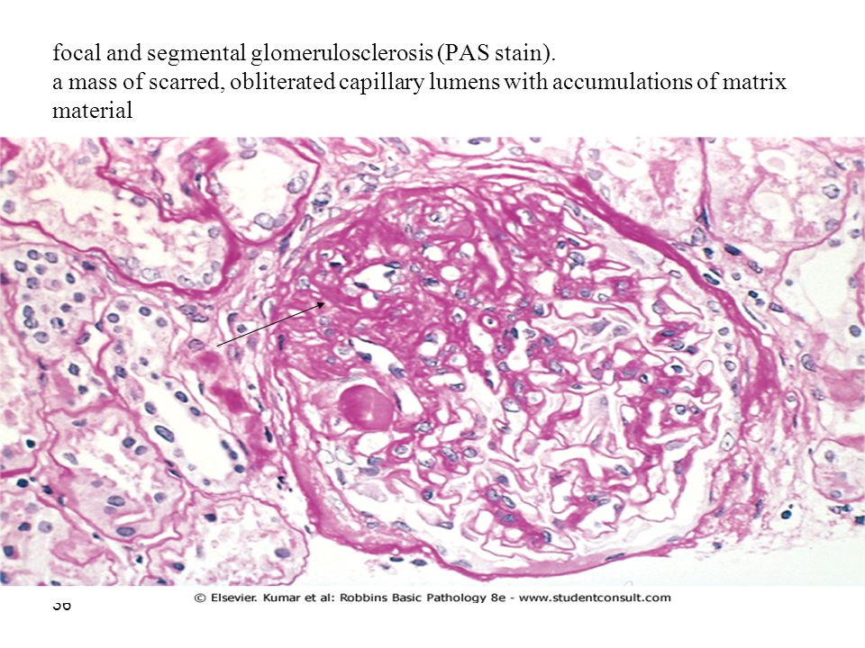 focal and segmental glomerulosclerosis (PAS stain)