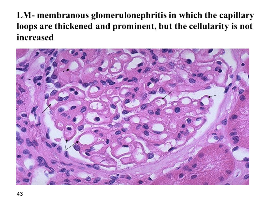LM- membranous glomerulonephritis in which the capillary loops are thickened and prominent, but the cellularity is not increased
