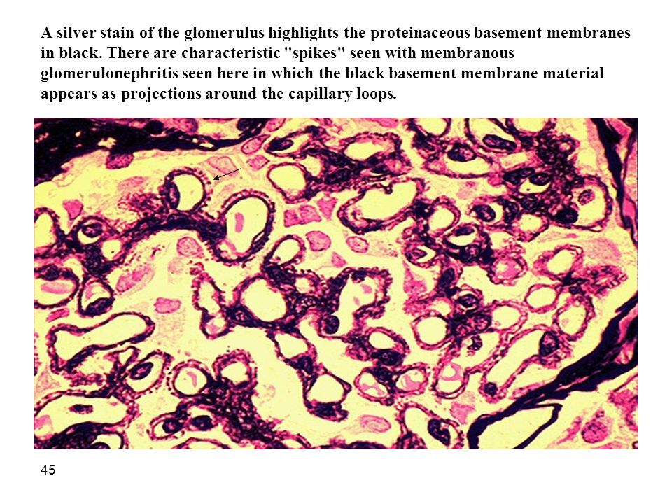 A silver stain of the glomerulus highlights the proteinaceous basement membranes in black.