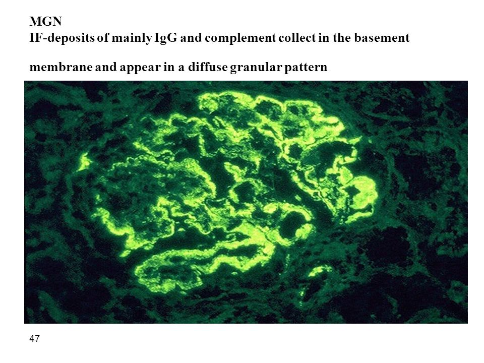 MGN IF-deposits of mainly IgG and complement collect in the basement membrane and appear in a diffuse granular pattern
