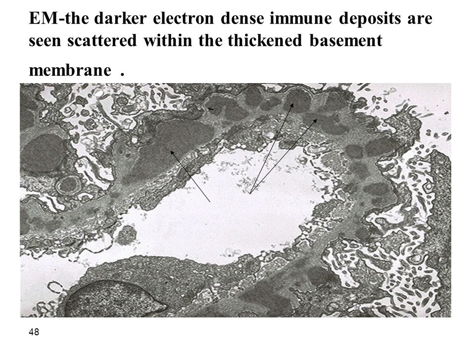 EM-the darker electron dense immune deposits are seen scattered within the thickened basement membrane.
